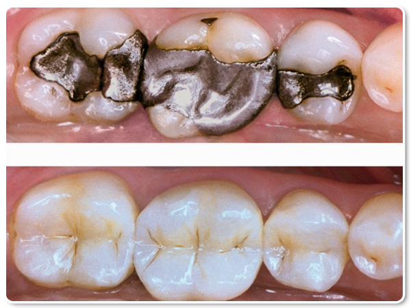 "Silver ""Amalgam"" Fillings vs White ""Resin"" Fillings"