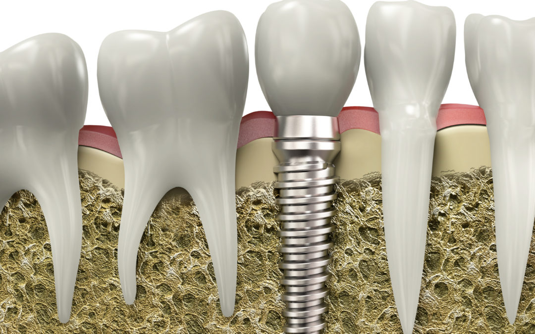 Dental Implants: What is an implant?