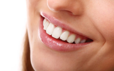 Bridges: An overview and Replacing Missing Teeth