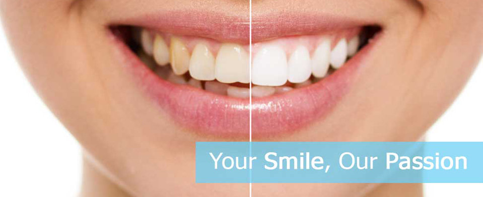 Your Smile Analysis