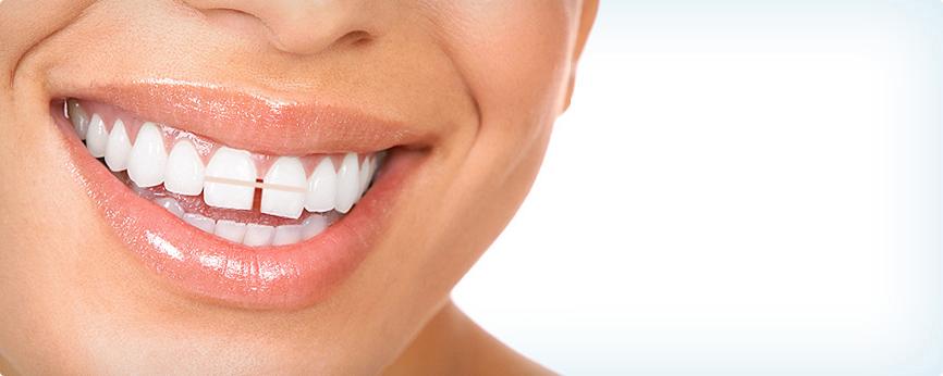 Diastemas: Closing Spaces Between Teeth