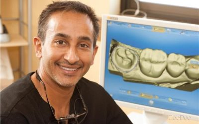 CEREC® Restorations